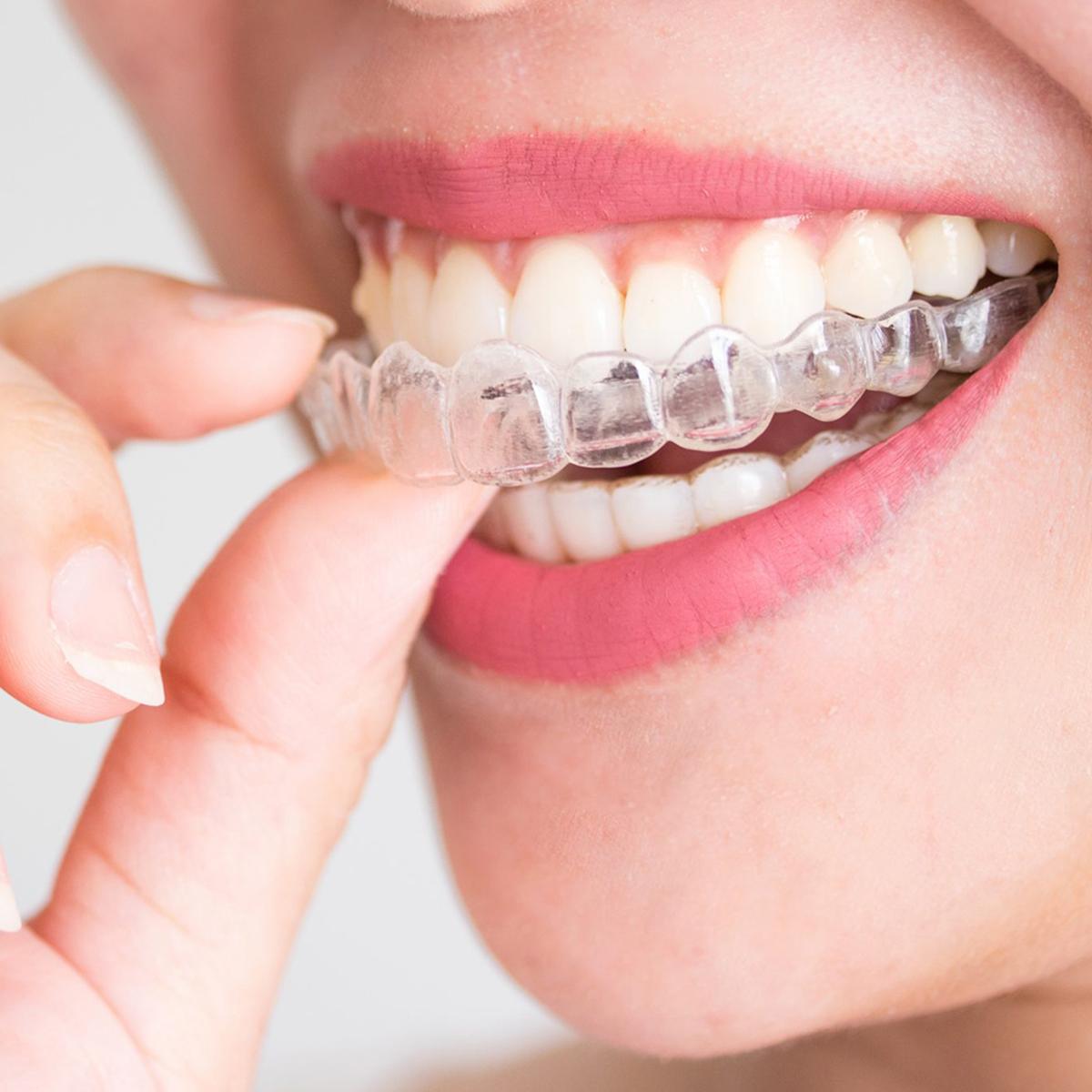 ortodoncjaortodoncja